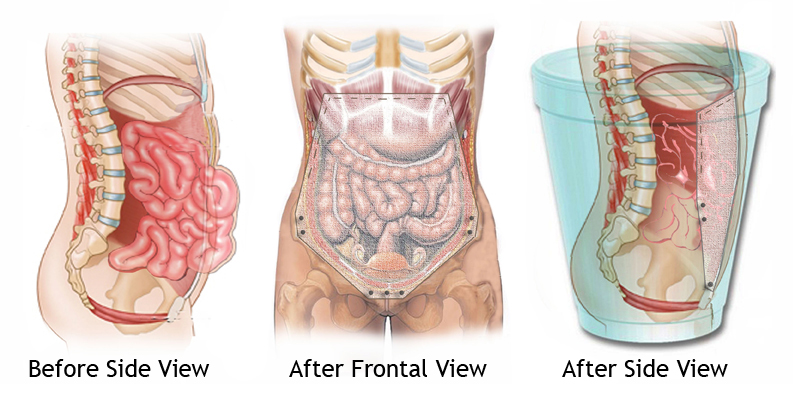 Hernia Treatment at The Institute For Advanced Reconstruction