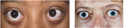 Graves' Ophthalmopathy (Eye Disease)