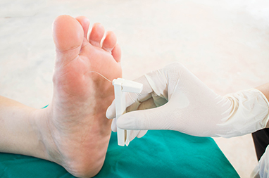 idiopathic neuropathy of the feet