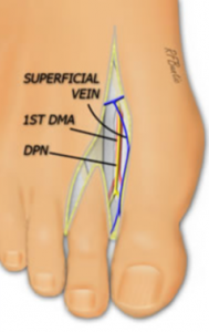 Toe hand diagram