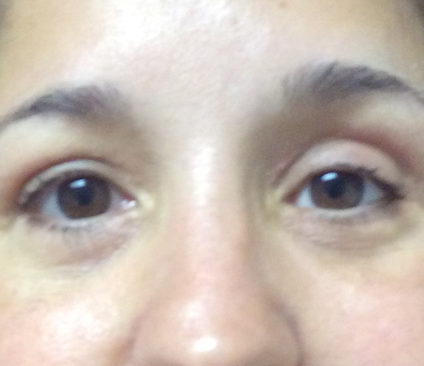 Surgery For Graves Disease Solves Woman S Eye Problems Ifar