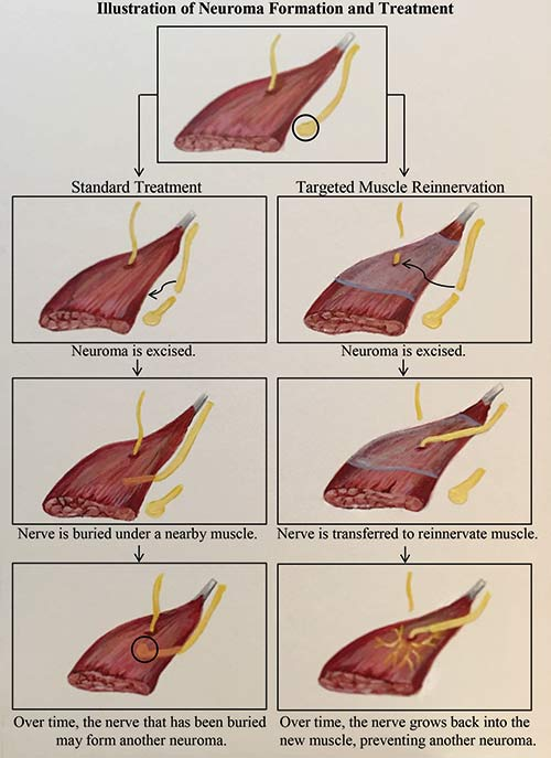Neuroma Formation & Treatment