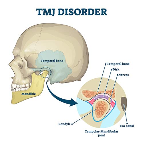 TMJ headaches