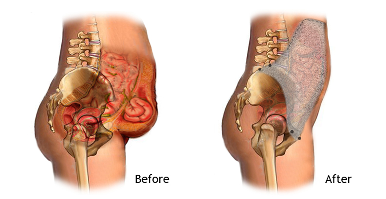 Hernia Repair Before and After Surgery